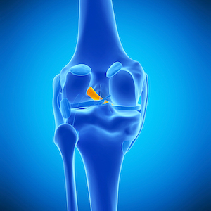 3d rendered, medically accurate illustration of the anterior cruciate ligament