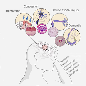 Effects of Traumatic Brain Injury